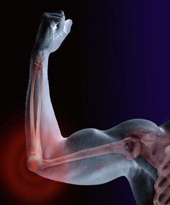 O músculo tipicamente liga-se ao osso pelas duas pontas