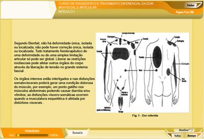 Curso Tratamento Miofascial