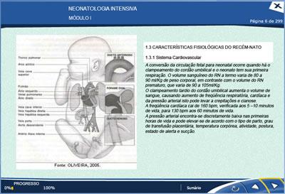 Curso Neonatologia Intensiva