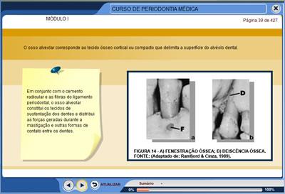 Curso Periodontia Médica - Estudo Sistêmico das Doenças Periodontais