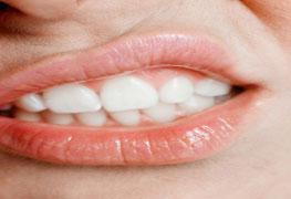 Pós-graduação Disfunção Temporomandibular e Dores Orofaciais - Especialização lato sensu
