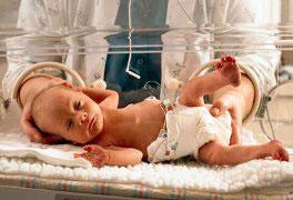 Procedimentos Técnicos em Neonatologia