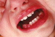 Lesões Bucais na Infância