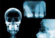 Curso Online de Radiologia Odontológica