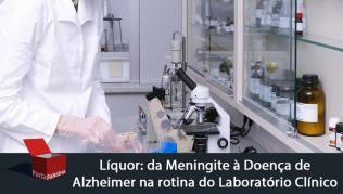 Líquor: da Meningite à Doença de Alzheimer na rotina do Laboratório Clínico