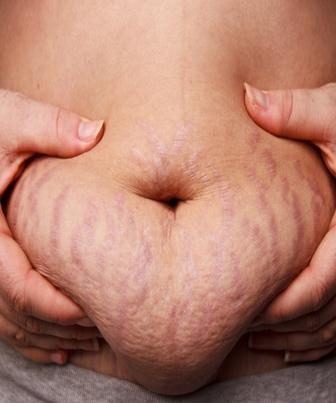 Classificação da pele estriada