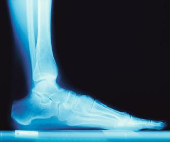 Articulações do tornozelo e pé