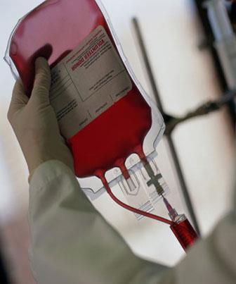 Anemia Hemolítica - O que é Anemia Hemolítica