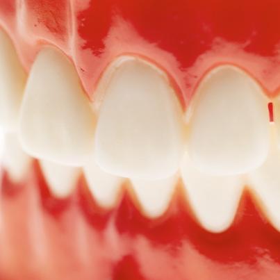 Mecanismo de Ação do Fluoreto na Prevenção da Cárie Dentária