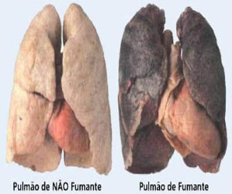 Carcinoma de Pulmão