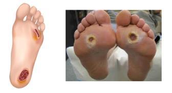 O pé diabético e a atuação da Enfermagem no processo do autocuidado.