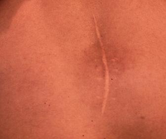 Processo de cicatrização e reparo tecidual
