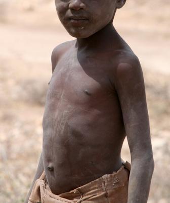 A desnutrição infantil envolve problemas socioeconômicos e político-culturais