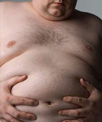 Obesidade: Principais causas
