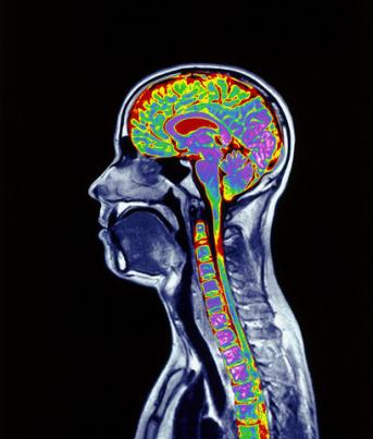 Neuropsicologia: Funções Cognitivas