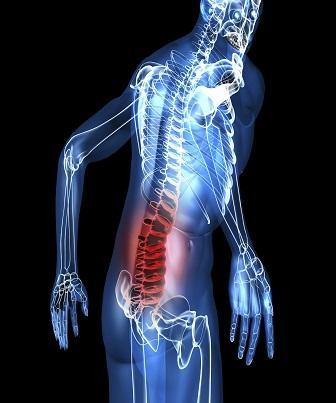 Osteogênese Imperfeita