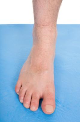 Cuidados com a saúde do pé