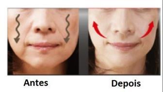 Fonoaudiologia Aplicada à Estética Facial: ameniza expressões faciais