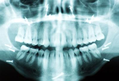 Curso Odontologia Legal