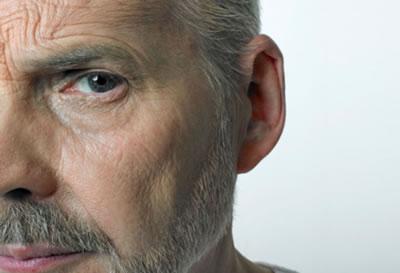 Curso Fonoaudiologia na Paralisia Facial