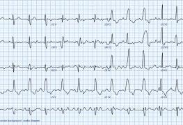 Curso Eletrocardiograma para Enfermeiros