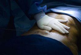 Curso Lipoaspiração - Pré e Pós-Operatório