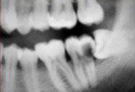 Cirurgia de Dentes Inclusos