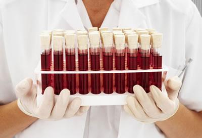 Interpretação de Hemogramas em Medicina Veterinária