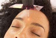 Laser Facial e Luz Intensa Pulsada