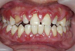 Periodontia Médica - Estudo Sistêmico das Doenças Periodontais